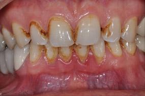 paradentose tænder